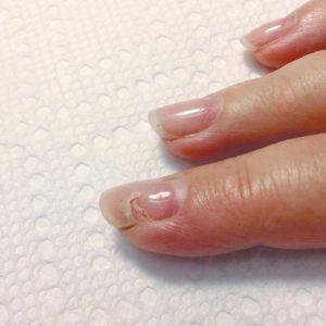 unghie rovinate gel