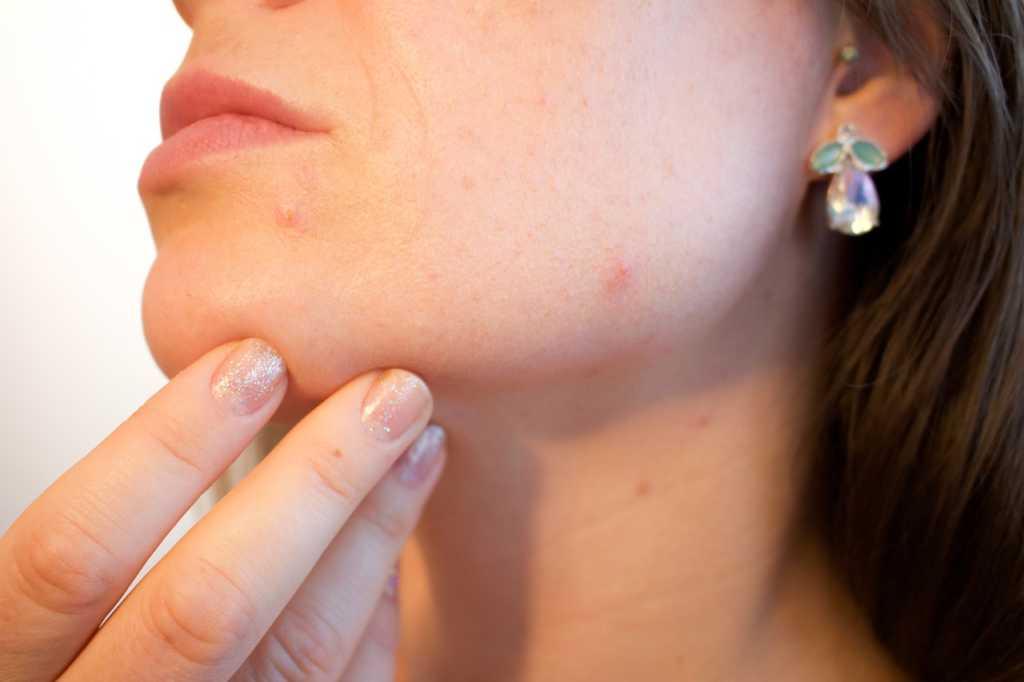 acne pelle grassa